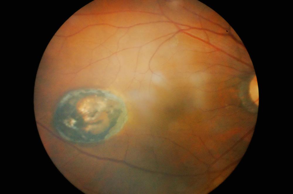 Makularna degeneracija je progresivno kronično propadanje žute pjege i trenutačno jedan od najzastupljenijih uzroka gubitka vida.