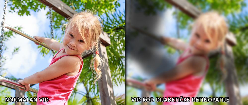 Dijabetička retinopatija uzrokuje slabljenje vida, a u konačnici i sljepoću.