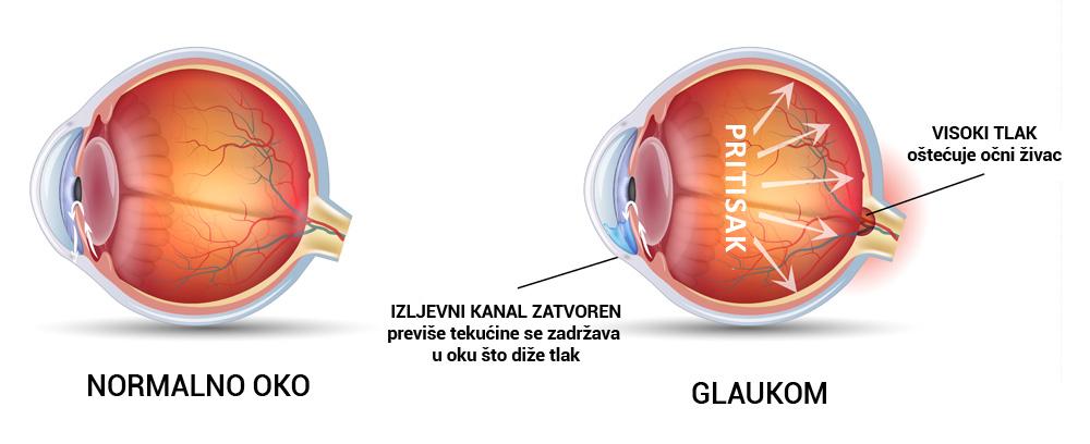 Glaukom nema simpotoma, a jedan je od glavnih uzroka sljepoće u svijetu.