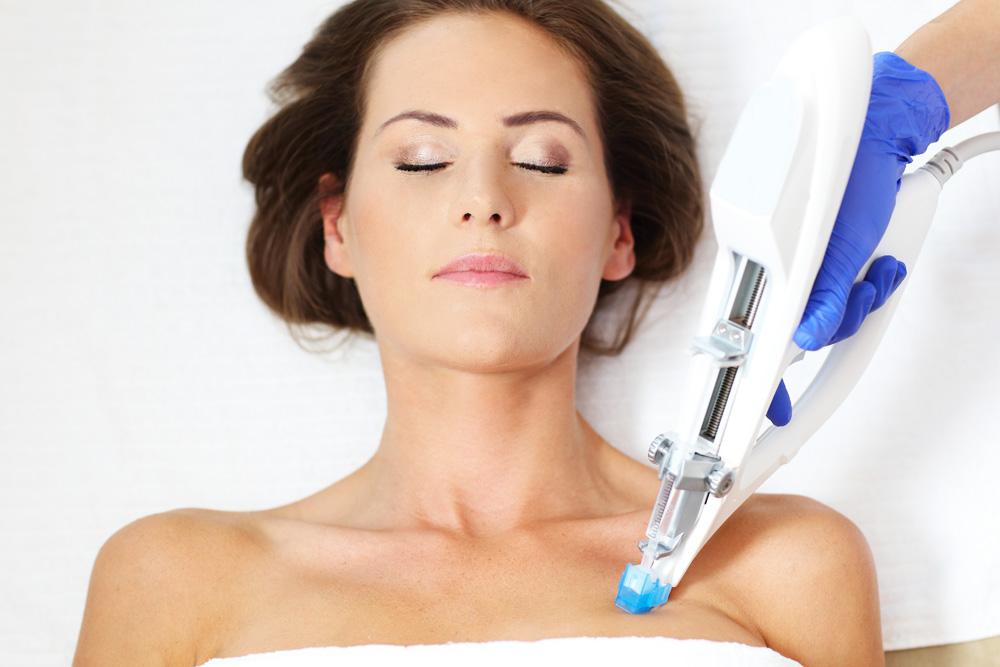 Mezoterapija lica u Poliklinici Laser RI